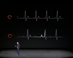 Apple Just Received a Fast Lane for Developing Health Features