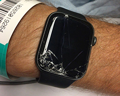 Apple Watch Helps locate Mountain Biker After Unexpected Fall